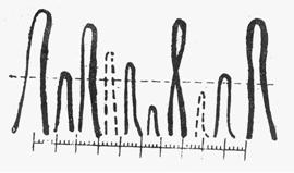 甲壁微循环的管袢数