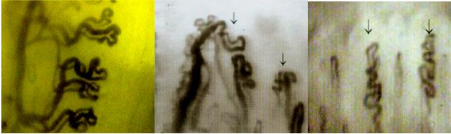 微循环检测仪检测畸形血管