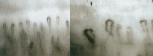 微循环检测仪检测管袢短小