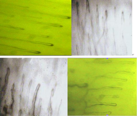 微循环检测仪检测管袢纤细