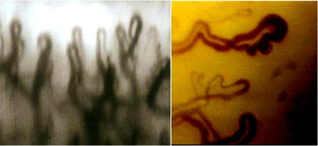 微循环检测仪检测淤血型血管