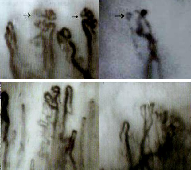 微循环检测仪检测增生型血管