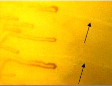甲壁微循环袢周汗腺导管